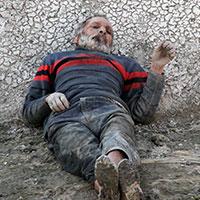 Yaşlı adam 1 hafta boyunca saçlarını yiyerek hayatta kaldı