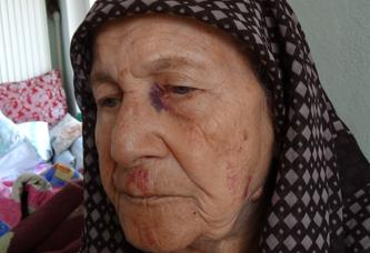 Vicdansızlar 86 yaşındaki kadını döverek 5 bileziğini gasp ettiler