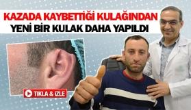 Kazada kaybettiği kulağından yeni bir kulak daha yapıldı