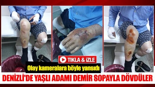 Denizli'de yaşlı adamı demir sopayla dövdüler